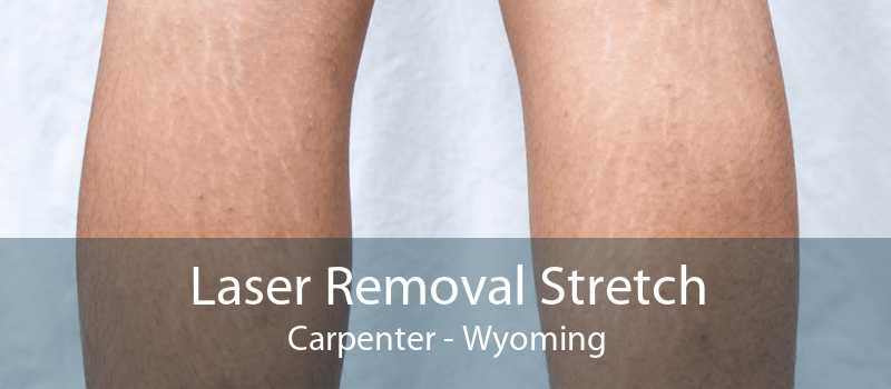 Laser Removal Stretch Carpenter - Wyoming