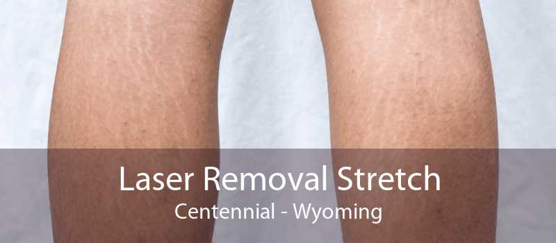 Laser Removal Stretch Centennial - Wyoming
