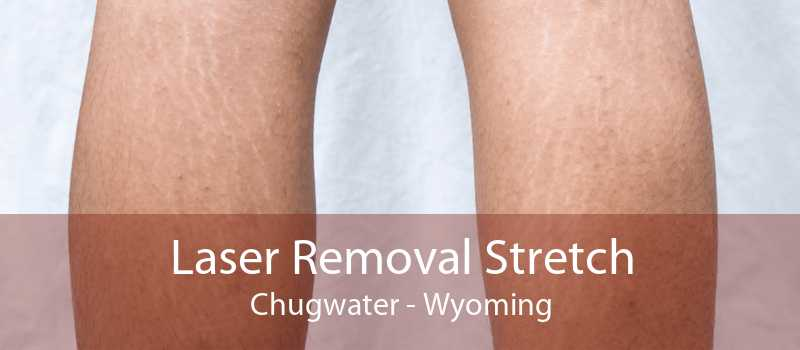 Laser Removal Stretch Chugwater - Wyoming