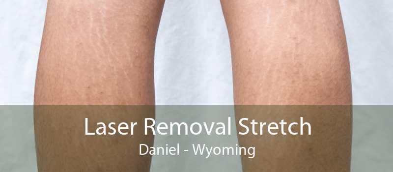 Laser Removal Stretch Daniel - Wyoming