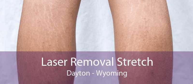 Laser Removal Stretch Dayton - Wyoming