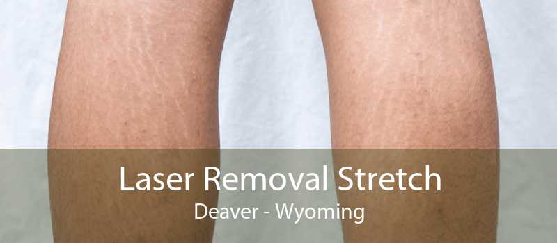 Laser Removal Stretch Deaver - Wyoming