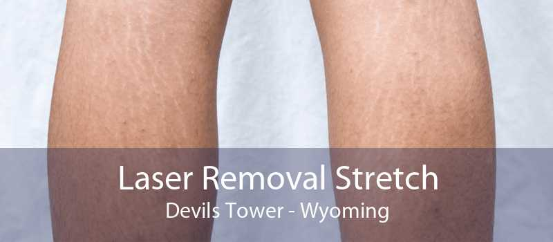 Laser Removal Stretch Devils Tower - Wyoming