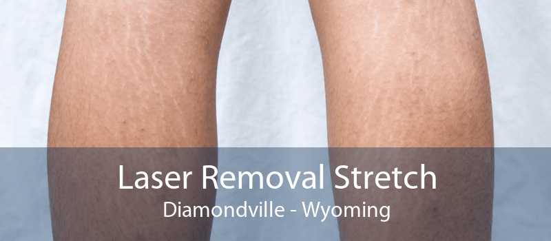 Laser Removal Stretch Diamondville - Wyoming