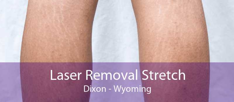 Laser Removal Stretch Dixon - Wyoming
