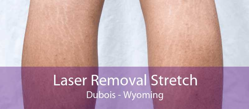 Laser Removal Stretch Dubois - Wyoming