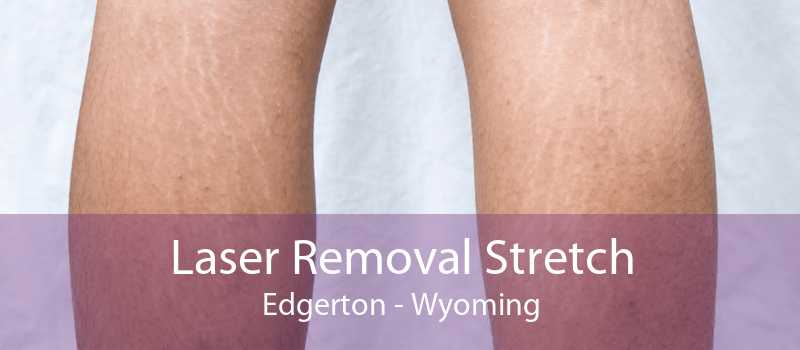 Laser Removal Stretch Edgerton - Wyoming