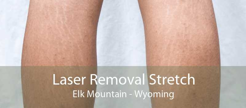 Laser Removal Stretch Elk Mountain - Wyoming