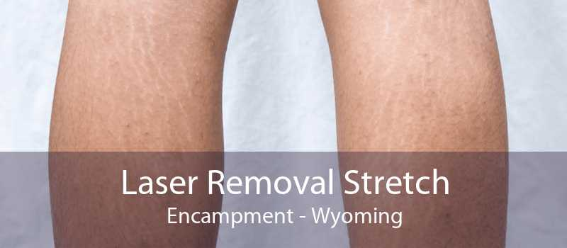 Laser Removal Stretch Encampment - Wyoming