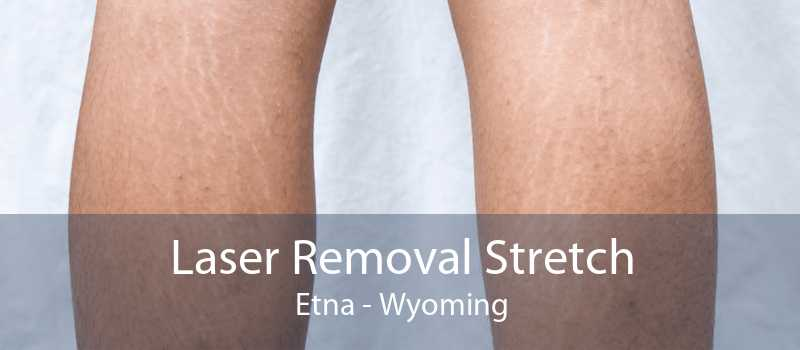 Laser Removal Stretch Etna - Wyoming