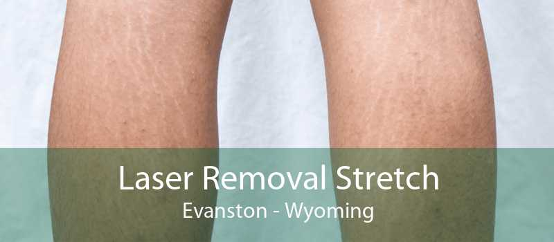 Laser Removal Stretch Evanston - Wyoming