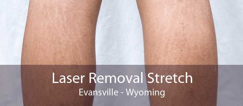 Laser Removal Stretch Evansville - Wyoming