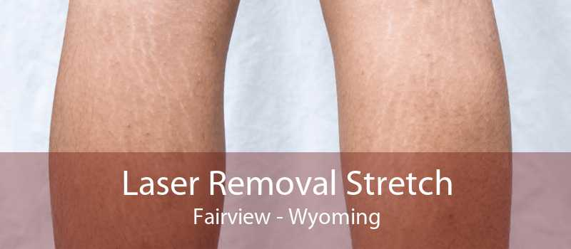 Laser Removal Stretch Fairview - Wyoming