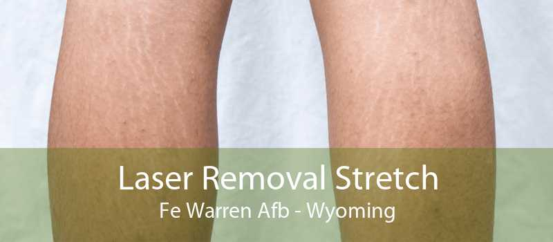 Laser Removal Stretch Fe Warren Afb - Wyoming