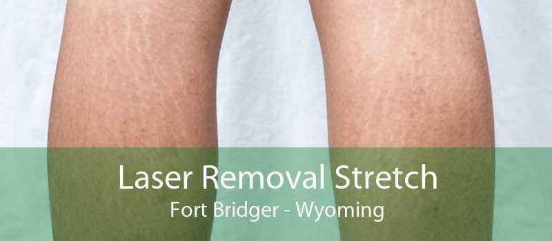 Laser Removal Stretch Fort Bridger - Wyoming