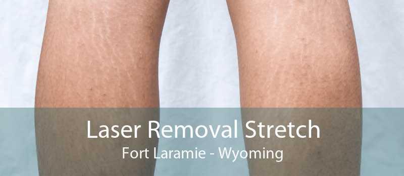 Laser Removal Stretch Fort Laramie - Wyoming
