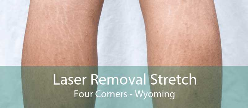 Laser Removal Stretch Four Corners - Wyoming