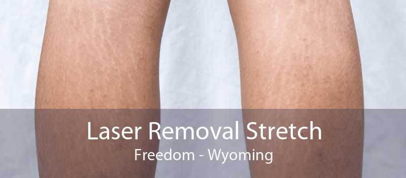 Laser Removal Stretch Freedom - Wyoming