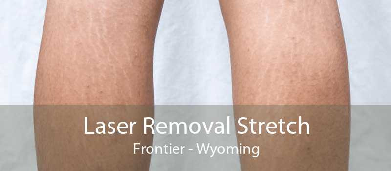 Laser Removal Stretch Frontier - Wyoming