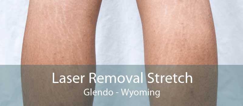 Laser Removal Stretch Glendo - Wyoming