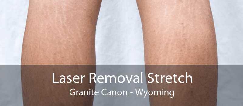 Laser Removal Stretch Granite Canon - Wyoming