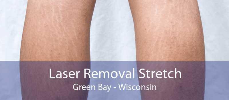Laser Removal Stretch Green Bay - Wisconsin