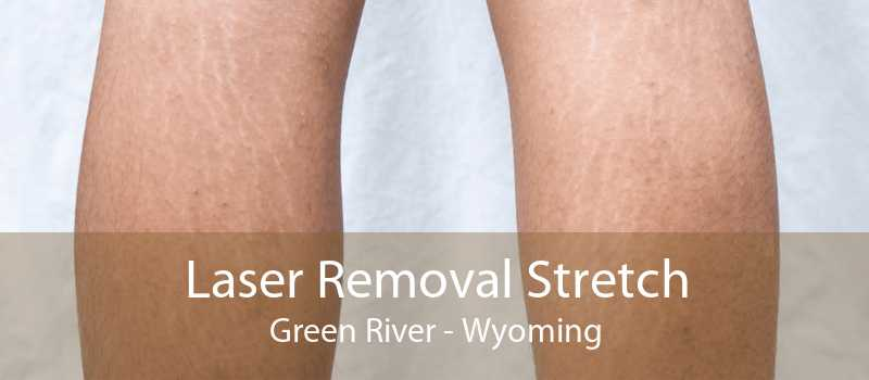Laser Removal Stretch Green River - Wyoming