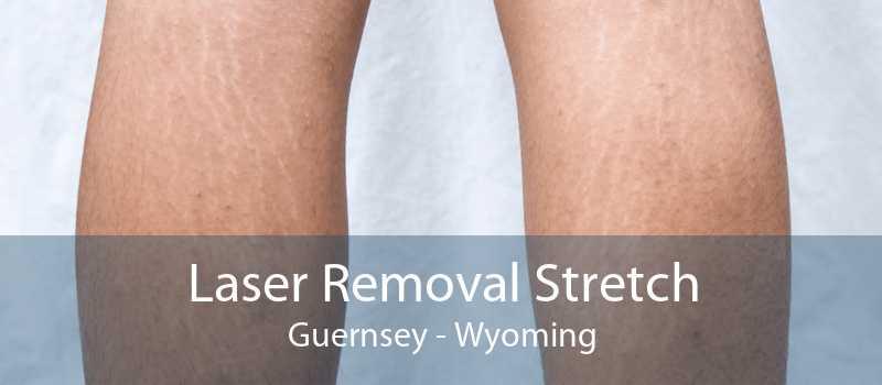 Laser Removal Stretch Guernsey - Wyoming