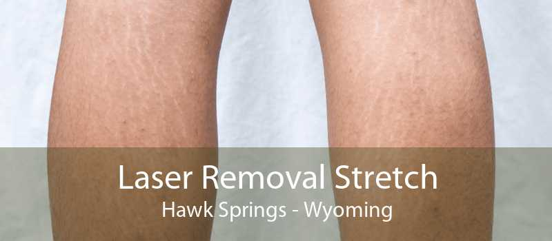 Laser Removal Stretch Hawk Springs - Wyoming