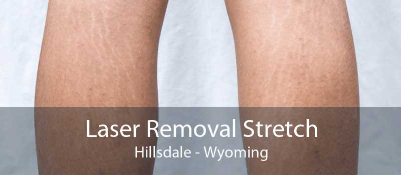 Laser Removal Stretch Hillsdale - Wyoming