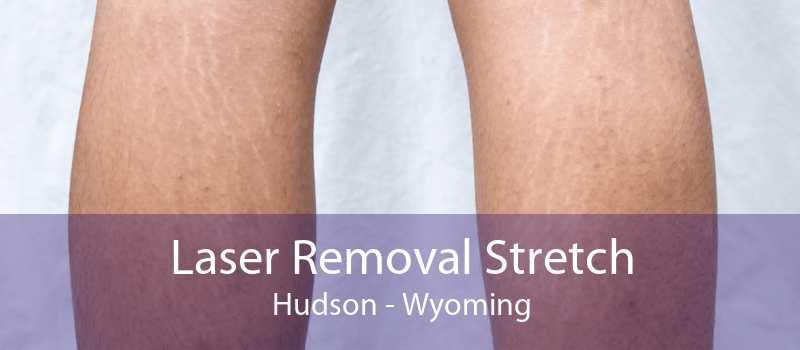 Laser Removal Stretch Hudson - Wyoming