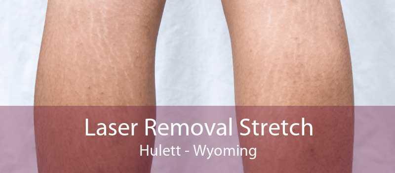 Laser Removal Stretch Hulett - Wyoming