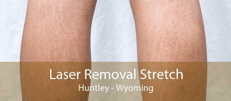 Laser Removal Stretch Huntley - Wyoming