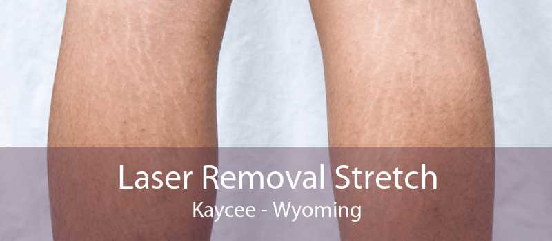 Laser Removal Stretch Kaycee - Wyoming