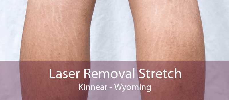 Laser Removal Stretch Kinnear - Wyoming