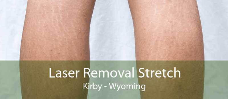 Laser Removal Stretch Kirby - Wyoming