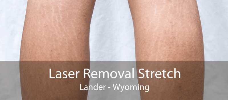 Laser Removal Stretch Lander - Wyoming