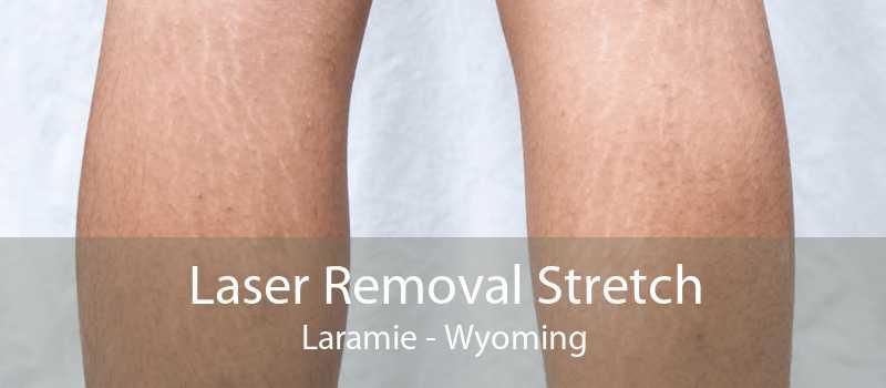 Laser Removal Stretch Laramie - Wyoming