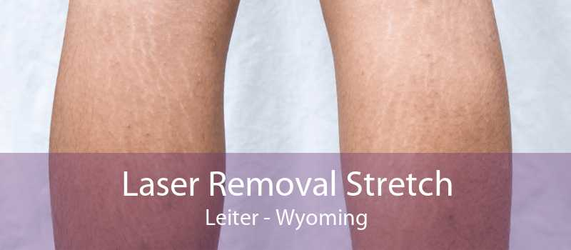 Laser Removal Stretch Leiter - Wyoming