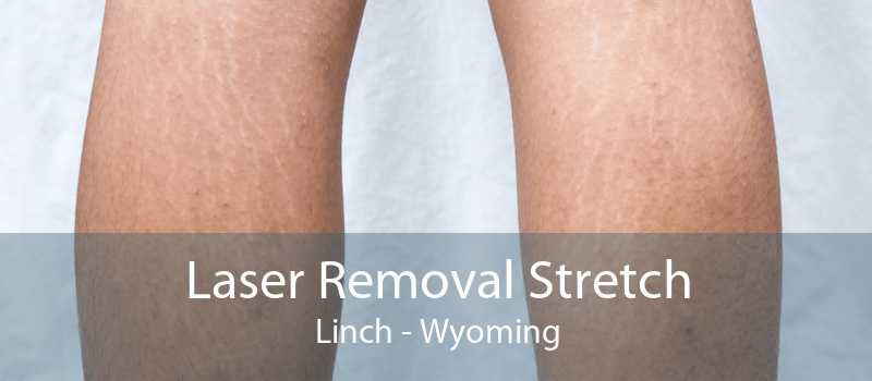 Laser Removal Stretch Linch - Wyoming