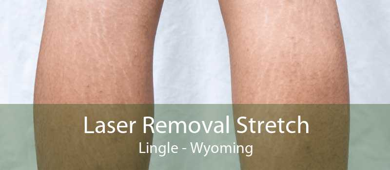 Laser Removal Stretch Lingle - Wyoming