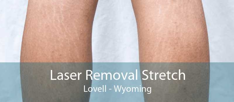 Laser Removal Stretch Lovell - Wyoming