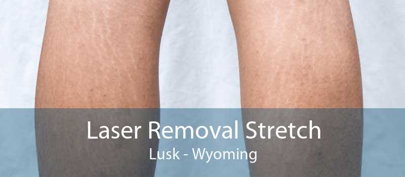 Laser Removal Stretch Lusk - Wyoming