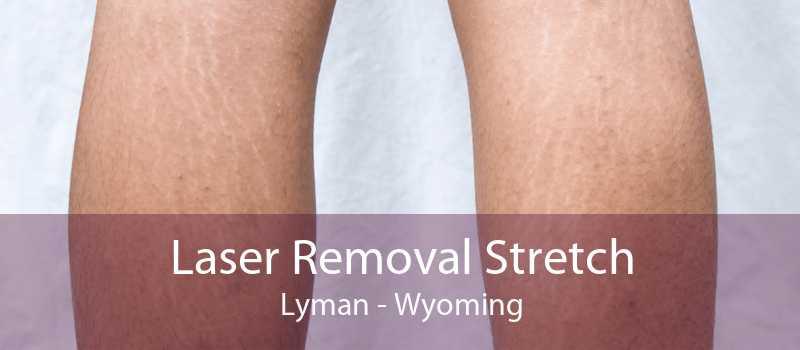 Laser Removal Stretch Lyman - Wyoming