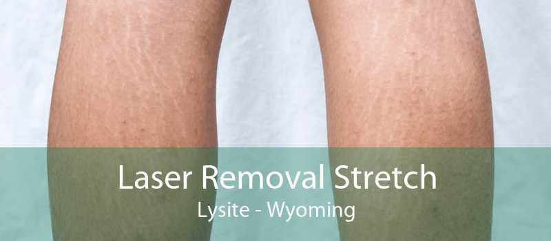 Laser Removal Stretch Lysite - Wyoming