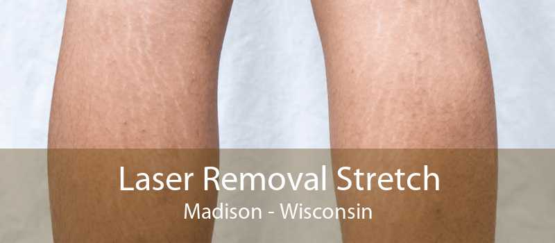 Laser Removal Stretch Madison - Wisconsin