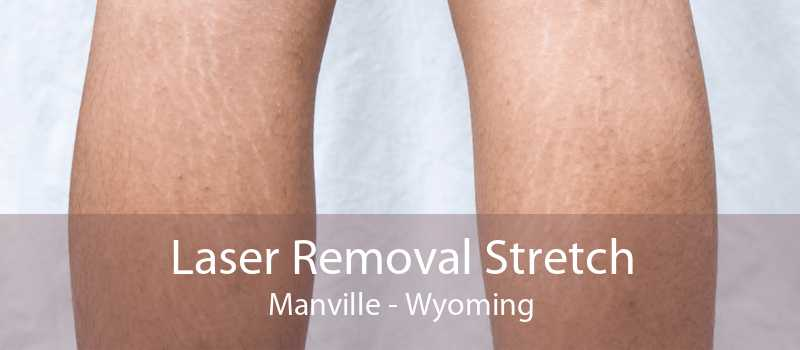 Laser Removal Stretch Manville - Wyoming