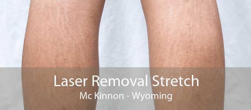 Laser Removal Stretch Mc Kinnon - Wyoming