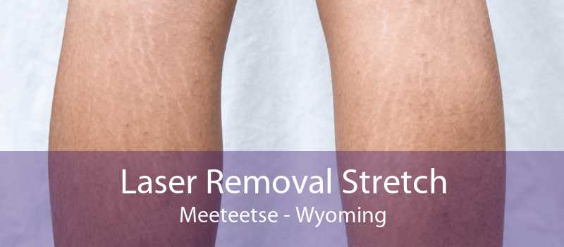 Laser Removal Stretch Meeteetse - Wyoming