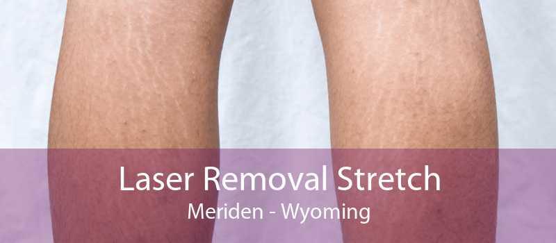 Laser Removal Stretch Meriden - Wyoming
